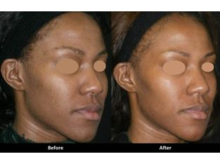 Bleach your skin with Rollyhampy skin care products +27797455644
