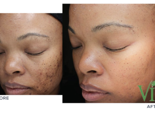pimple removal cream from Rollyhampy +27797455644