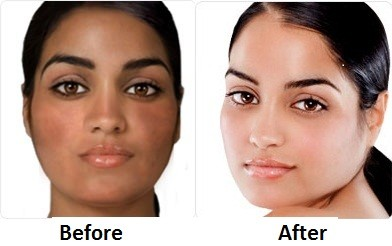 Get the healthy and glowing skin with Rollyhampy 0