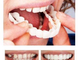 Teeth Braces DIY Home use 2 STAGES On SPECIAL TODAY ONLY